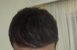 hair-restoration (22)