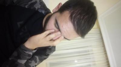 hair-restoration (23)