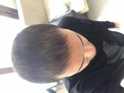 hair-restoration (8)