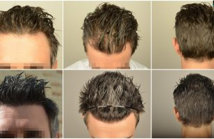 hair-transplant-in-turkey-cost (11)