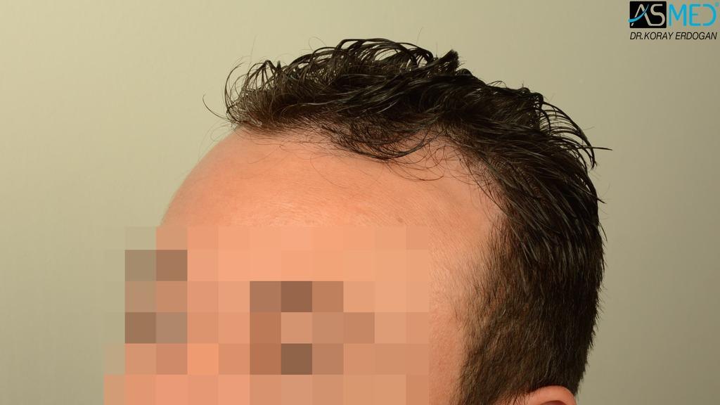 hair-transplant-near-me (1)