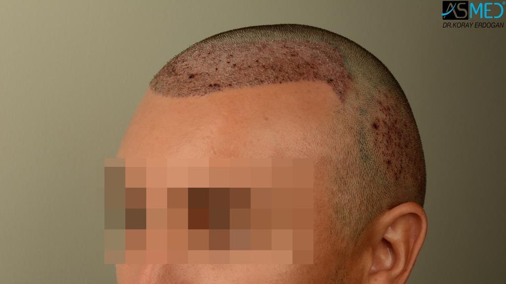 hair-transplant-near-me (10)