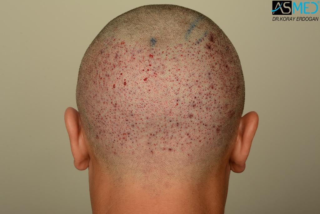 hair-transplant-near-me (12)