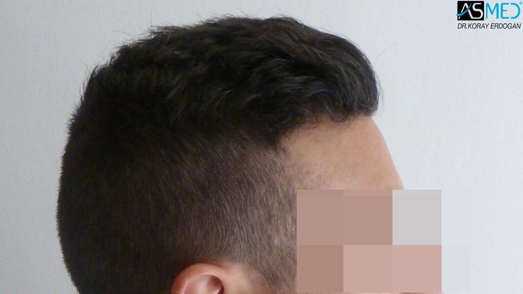 hair-transplant-near-me (15)