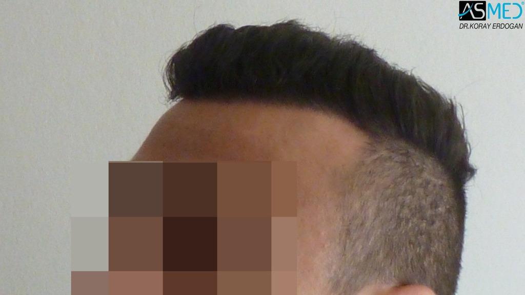 hair-transplant-near-me (16)