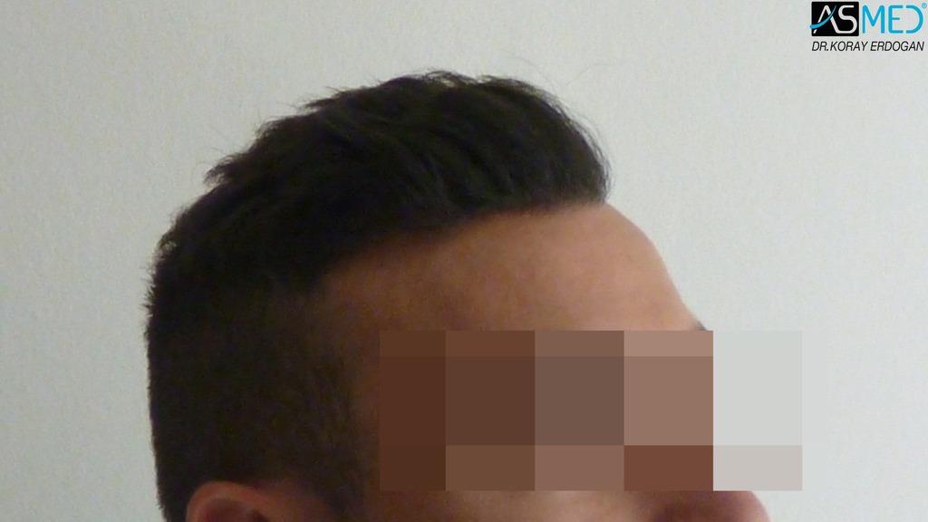 hair-transplant-near-me (17)
