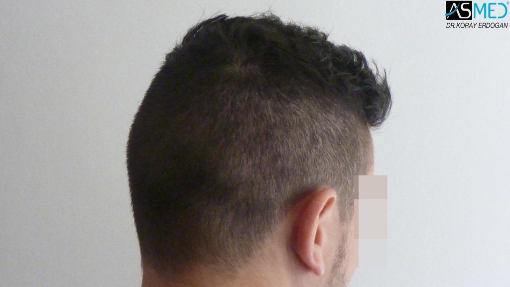 hair-transplant-near-me (19)