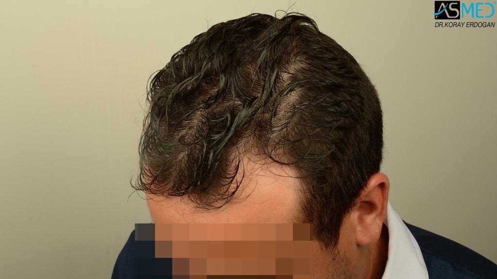 hair-transplant-near-me (2)