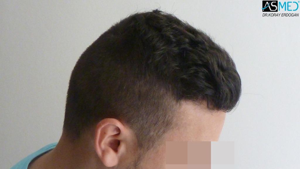 hair-transplant-near-me (20)