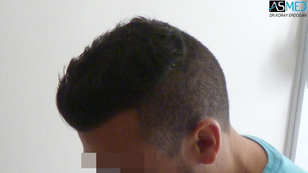hair-transplant-near-me (21)