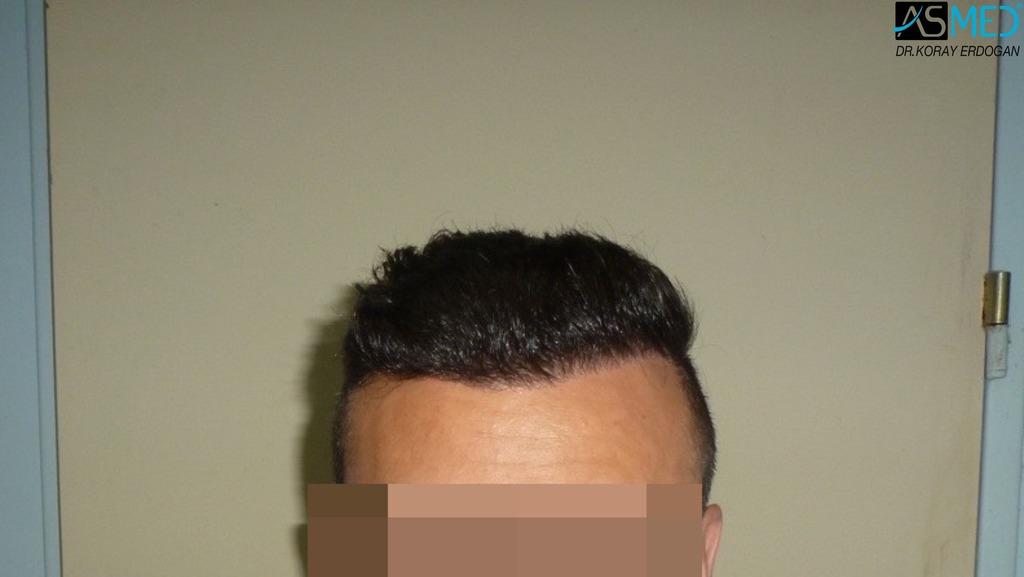 hair-transplant-near-me (23)