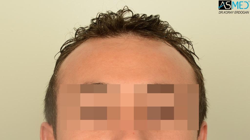 hair-transplant-near-me (25)