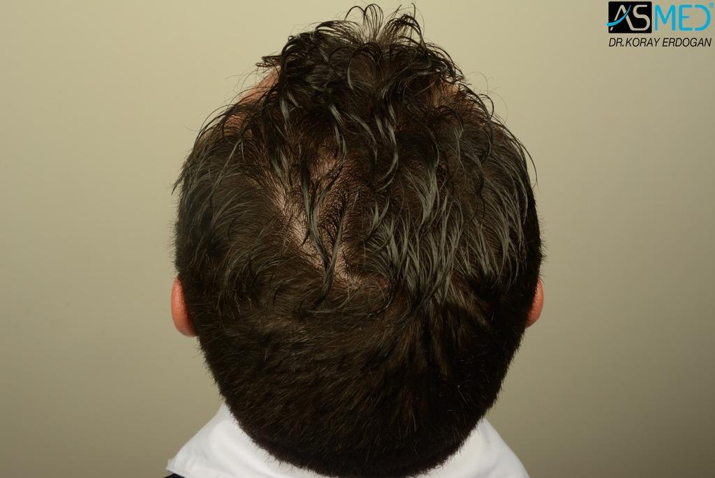 hair-transplant-near-me (5)