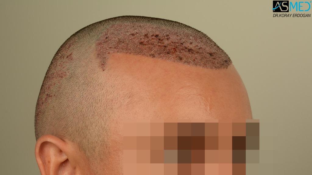 hair-transplant-near-me (8)