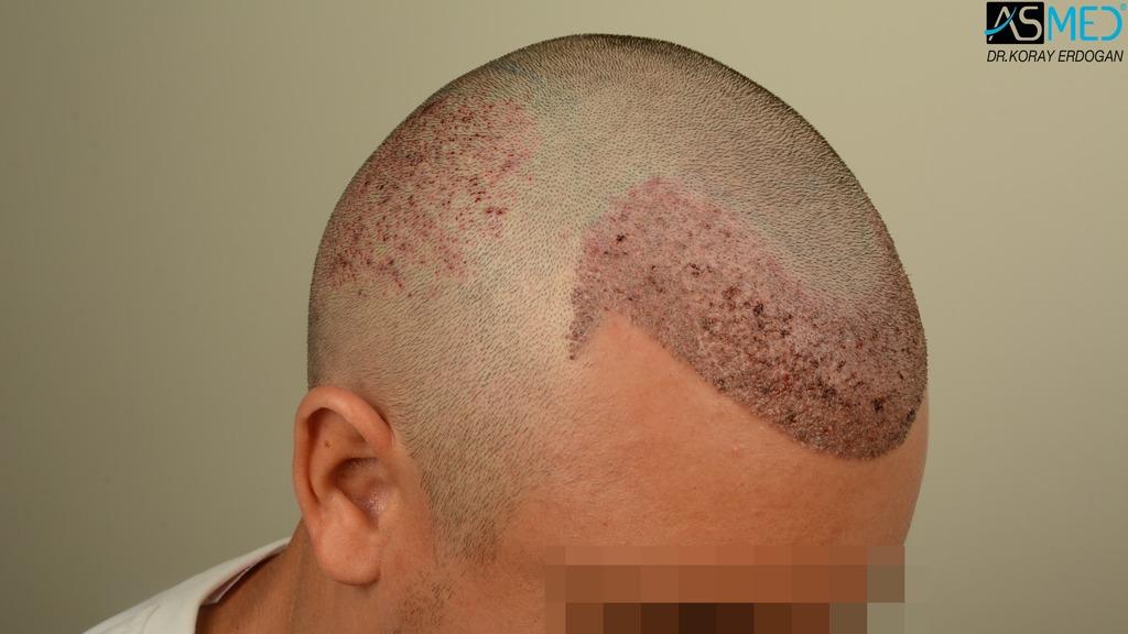 hair-transplant-near-me (9)