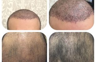 hair-transplant-review-istanbul (8)