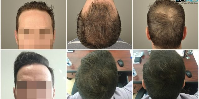 hair-transplant-turkey-forum (1)