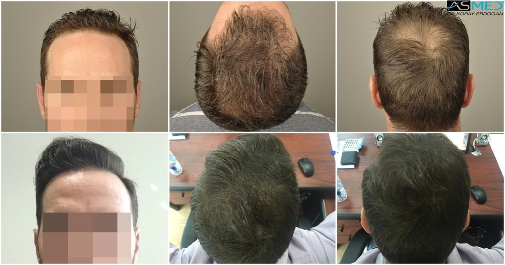 DR.ERDOGAN ASMED RESULT-4009 GRAFTS FUE