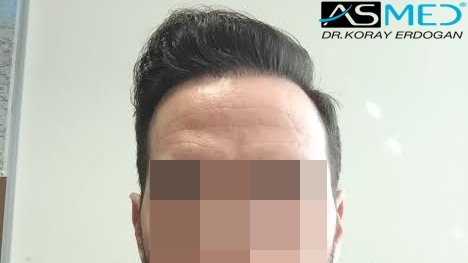 hair-transplant-turkey-forum (1)