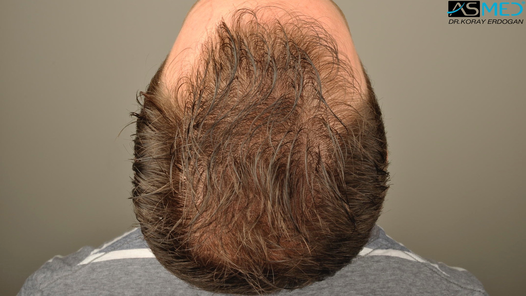 hair-transplant-turkey-forum (10)