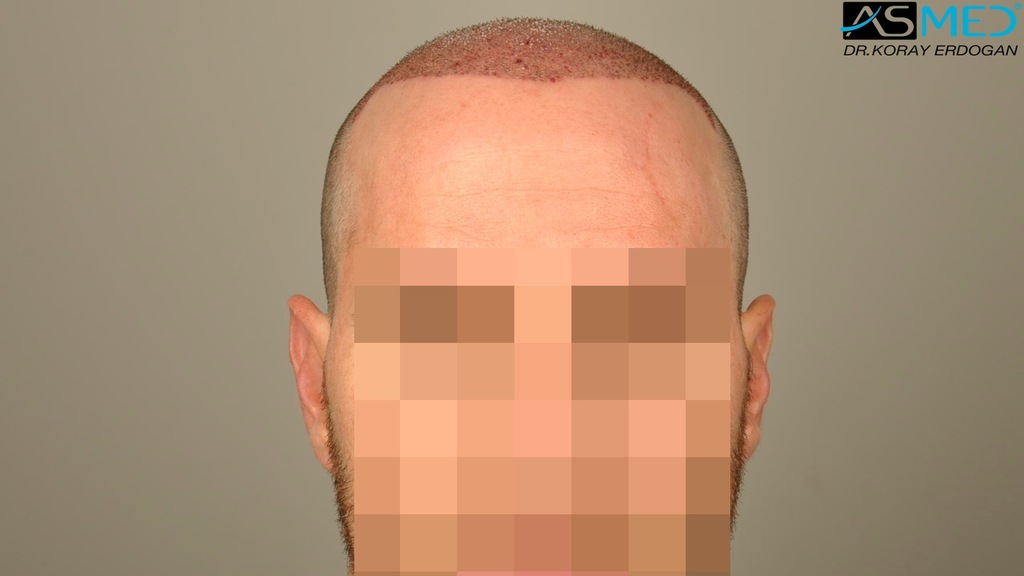 hair-transplant-turkey-forum (11)