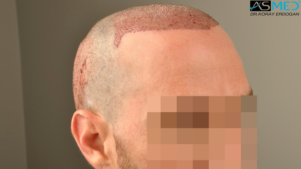 hair-transplant-turkey-forum (12)