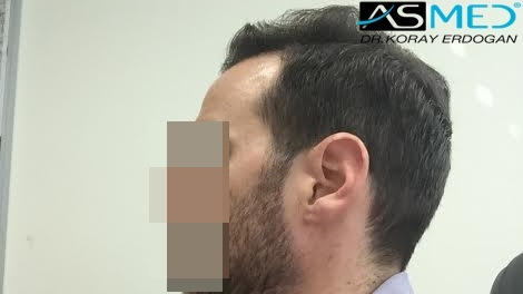 hair-transplant-turkey-forum (2)