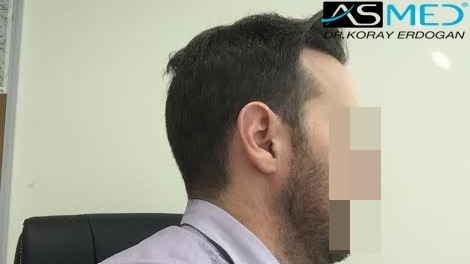hair-transplant-turkey-forum (3)