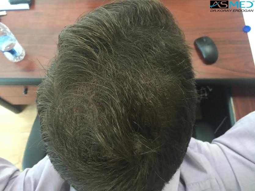 hair-transplant-turkey-forum (5)