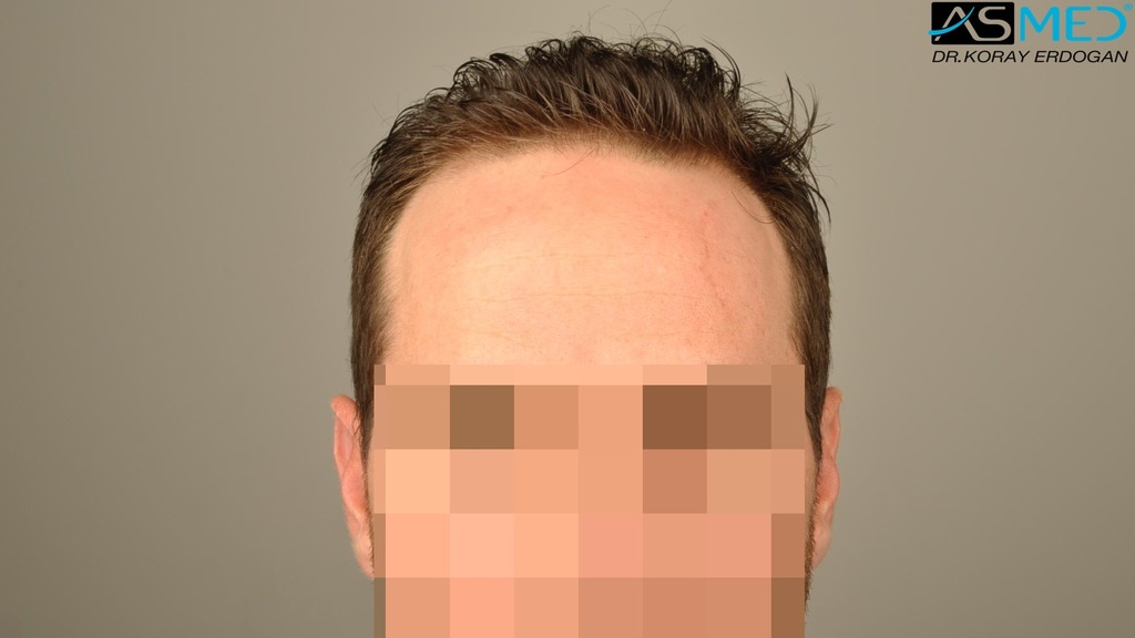 hair-transplant-turkey-forum (6)