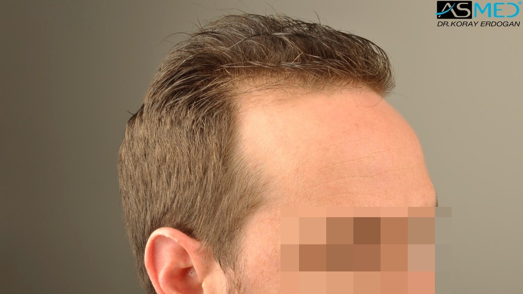 hair-transplant-turkey-forum (7)