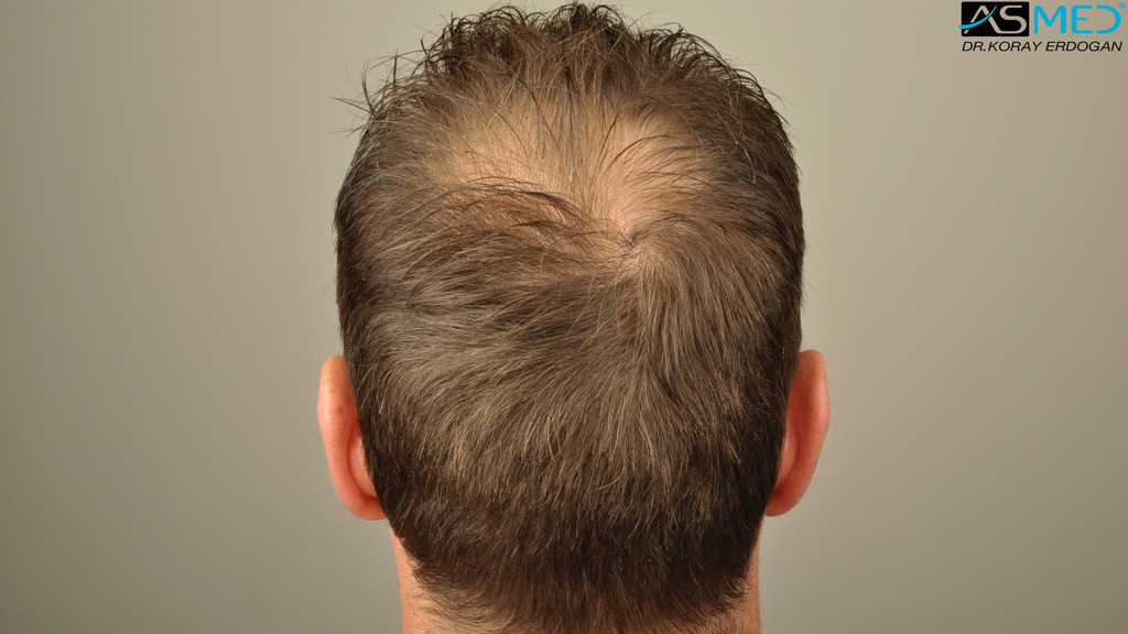 hair-transplant-turkey-forum (9)