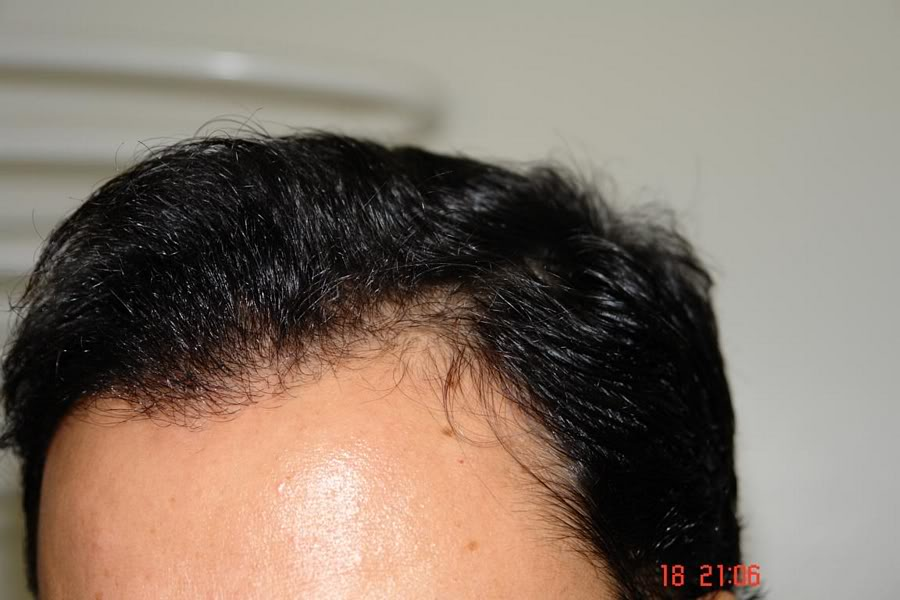 Hair-transplant-real-results-turkey (1)