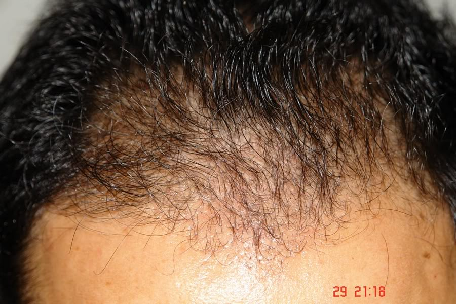 Hair-transplant-real-results-turkey (11)
