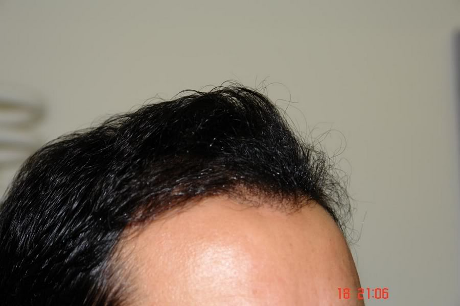 Hair-transplant-real-results-turkey (15)
