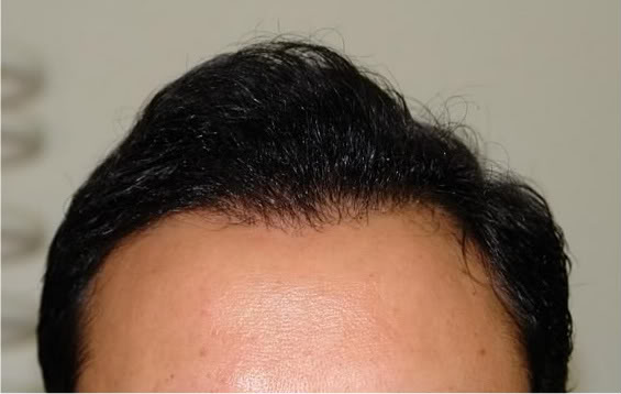 Hair-transplant-real-results-turkey (4)