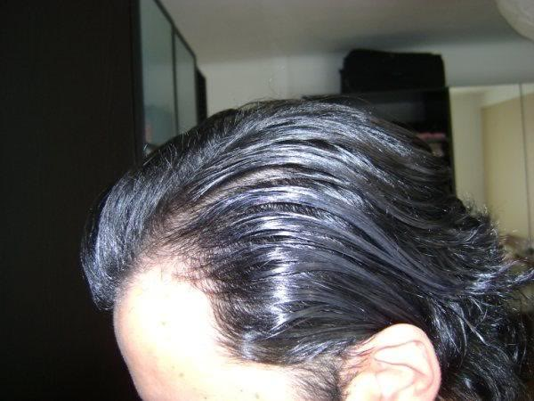 Hair-transplant-real-results-turkey (5)