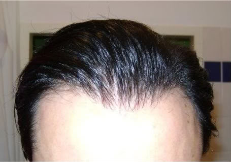 Hair-transplant-real-results-turkey (7)