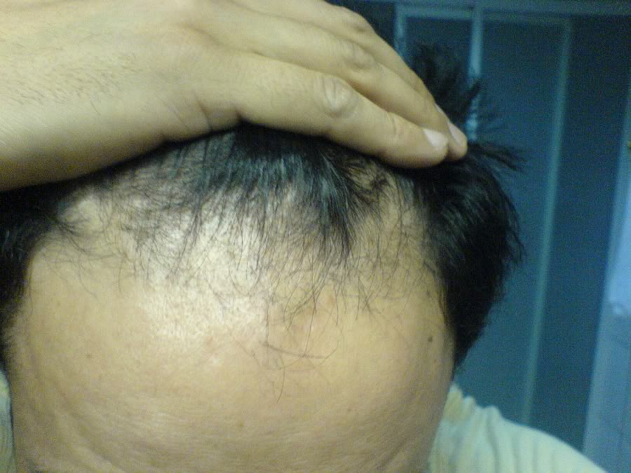 Hair-transplant-real-results-turkey (8)
