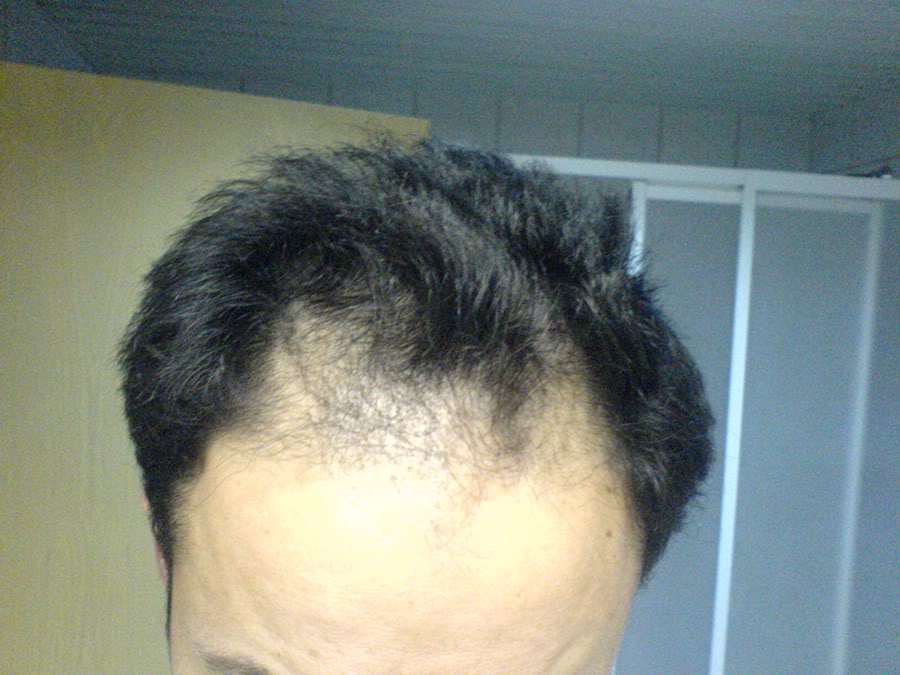 Hair-transplant-real-results-turkey (9)