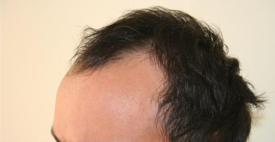 best-fue-hair-transplant (1)