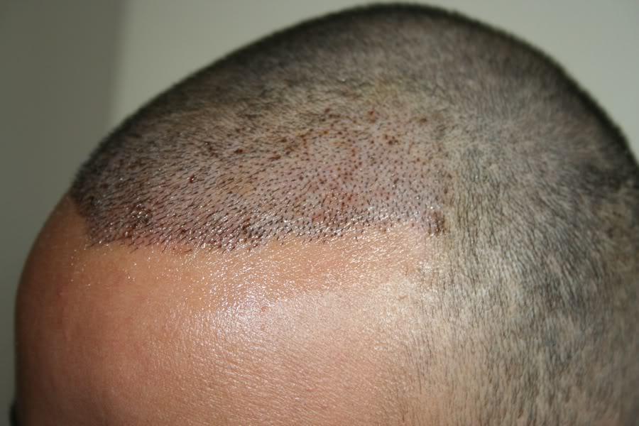 best-fue-hair-transplant (10)