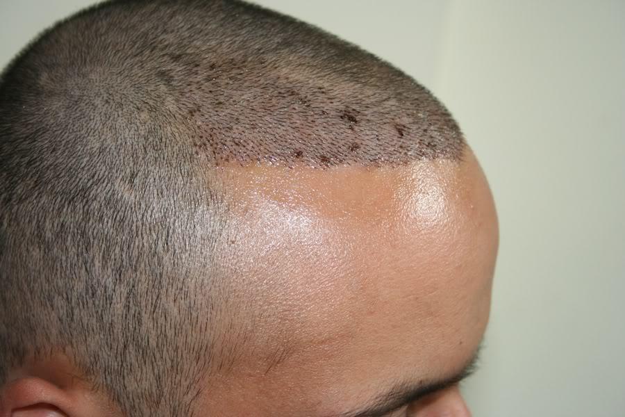 best-fue-hair-transplant (11)