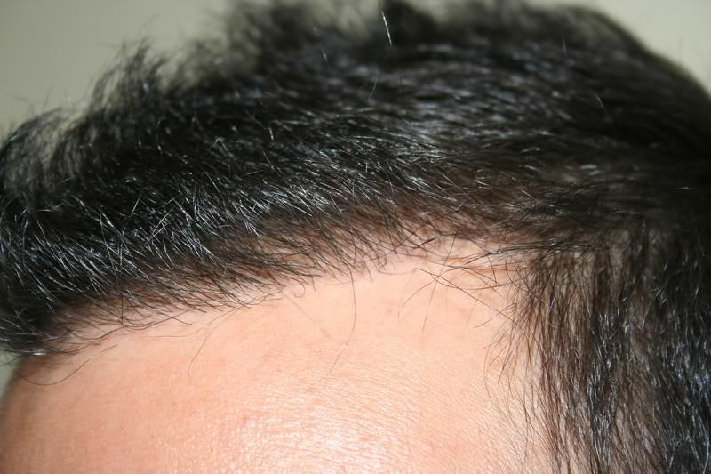 best-fue-hair-transplant (13)