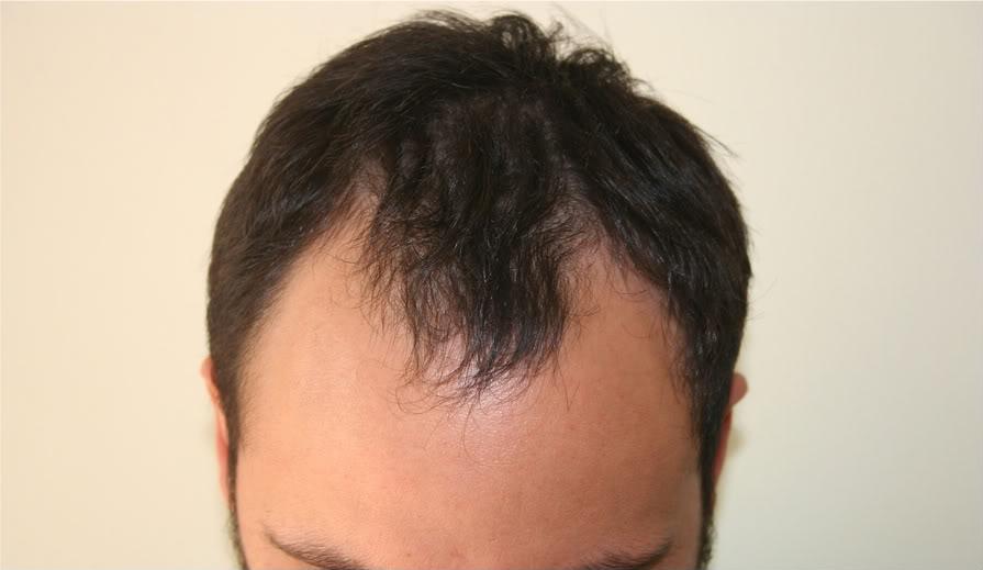 best-fue-hair-transplant (14)