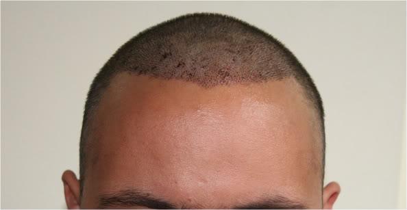 best-fue-hair-transplant (2)