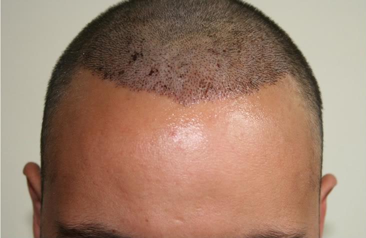 best-fue-hair-transplant (3)