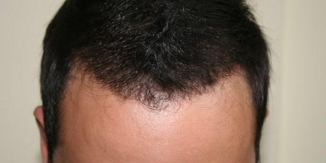 best-fue-hair-transplant (4)