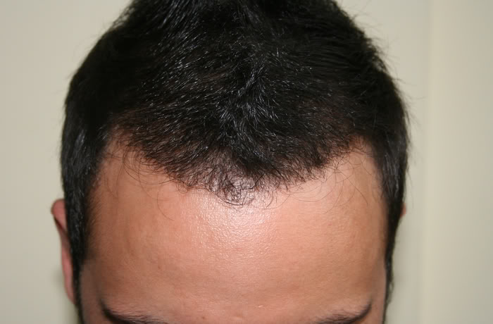 DR.KESER FUE-2007 GRAFTS-TURKEY