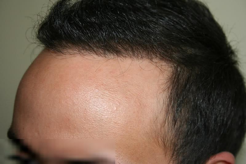best-fue-hair-transplant (6)
